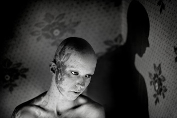 Alopecie#2